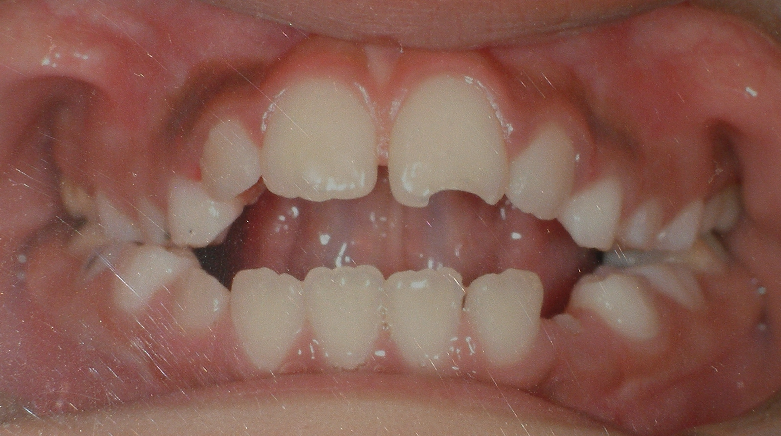 Thumbsucking Damage Treated By Preventive Orthodontics