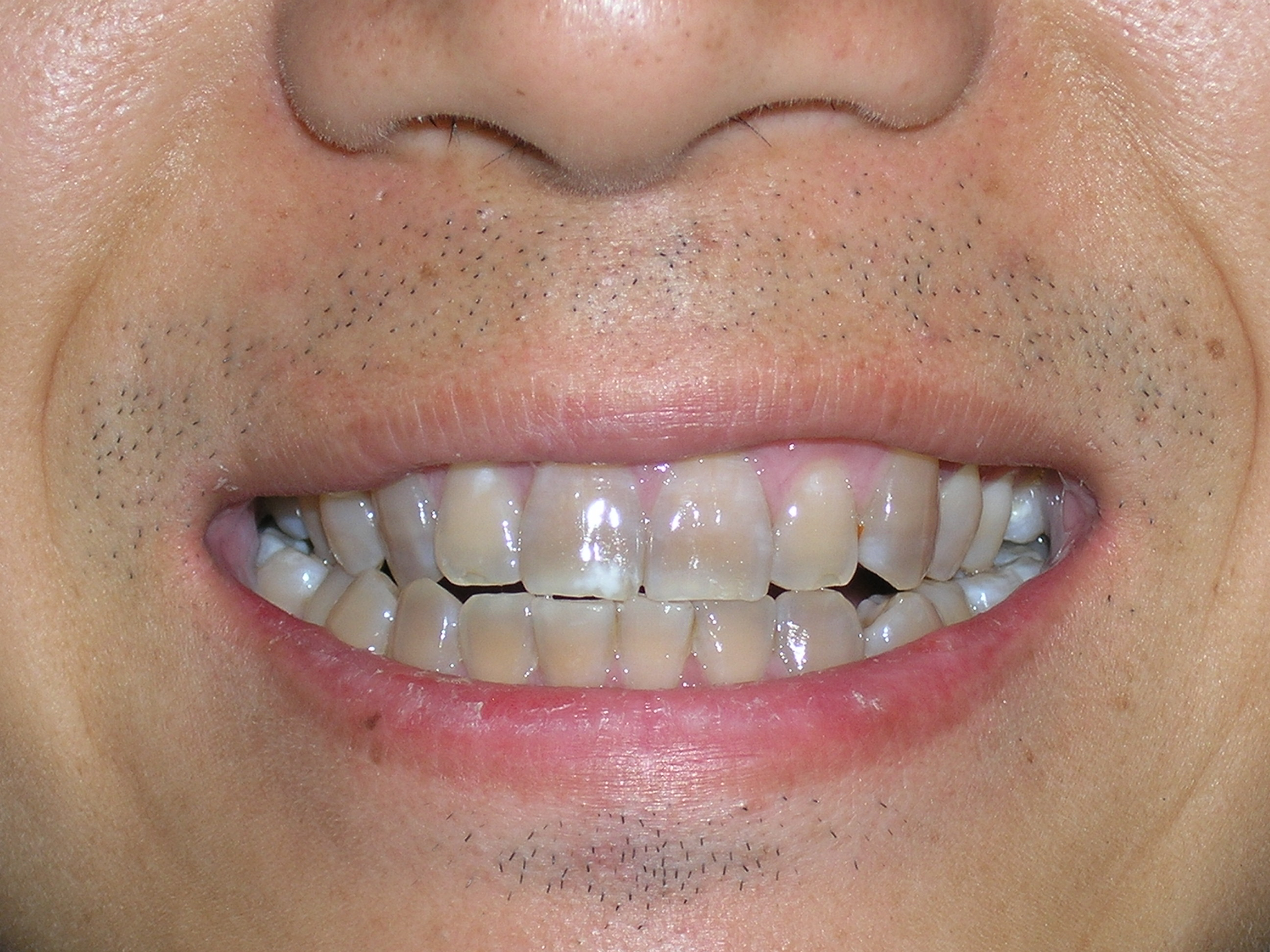 Dark Tetracycline Staining Can Also Be Treated With Cosmetic