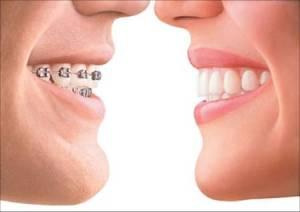invisalign pic.Pannu Dental Care