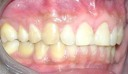 Spacing(DIASTEMA) AFTER