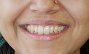 After invisalign.dental