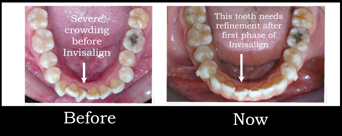 blog1.dentist dalvir pannu