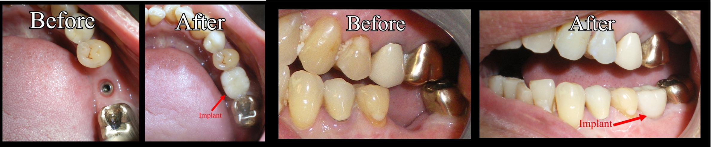 Ben Kwok's Before and After Shots.Pannu Dental Care