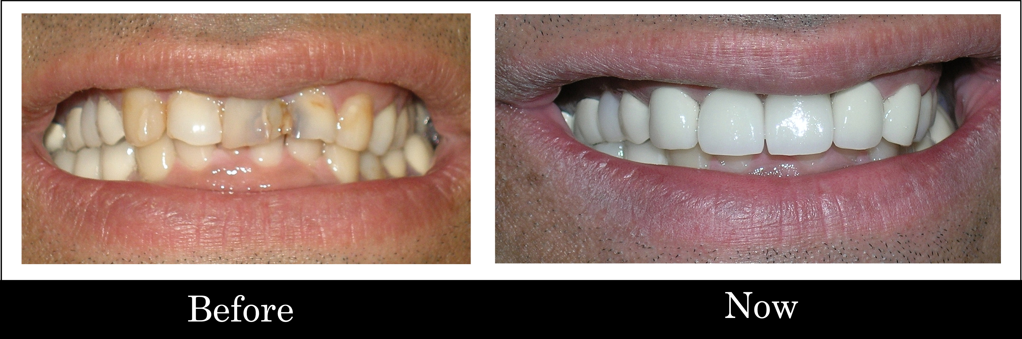 Vijay - before-after.Pannu Dental Care