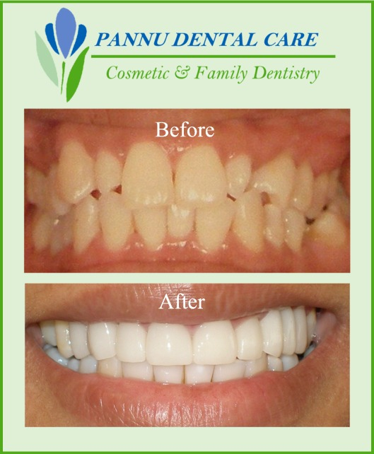 Porcelain Veneers Lumineers - Extreme Smile Makeover