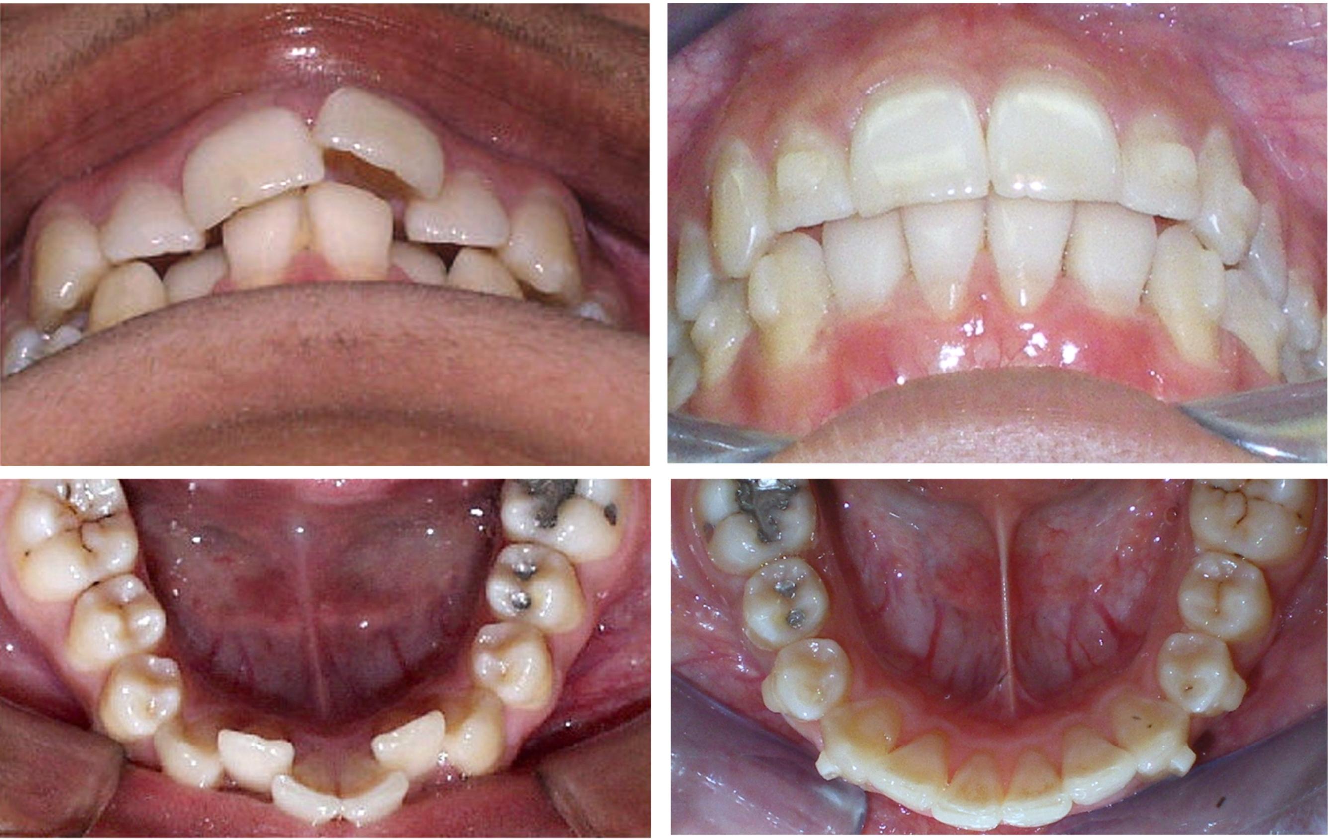 dentist dalvir pannu